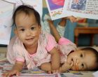 Conjoined Bhutanese twins undergo separation surgery